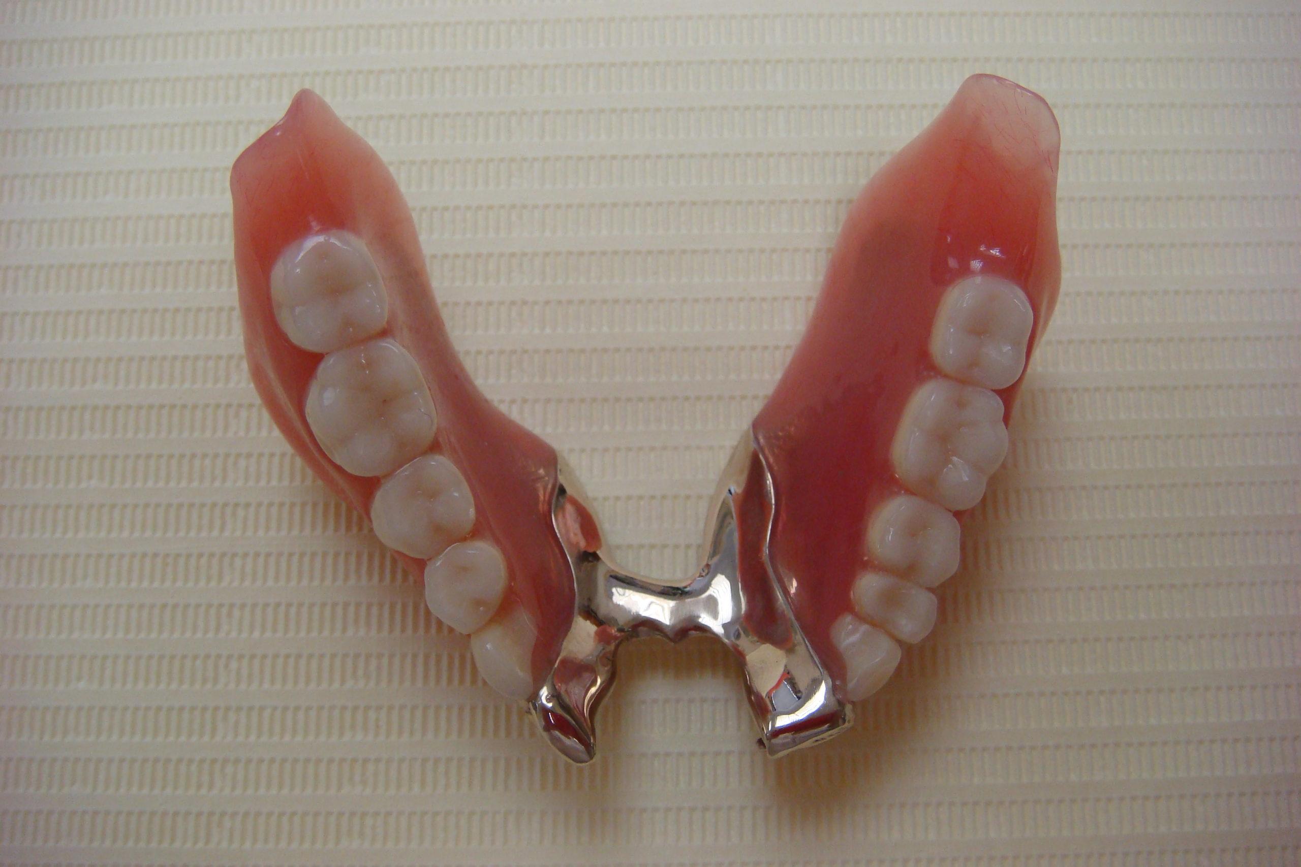 """下顎の金属床の部分入れ歯 scaled - <span style=""""font-family: serif;"""">入れ歯"""