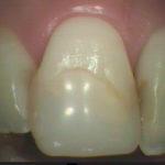 82 150x150 - 前歯の充填の再治療です。