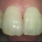 91 150x150 - 前歯の充填の再治療です。