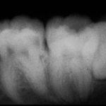 2 1 150x150 - 歯の歯髄組織(神経)を取らざるを得なかった症例です。