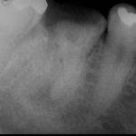 20140513154550 150x150 - 感染根管治療の症例です。