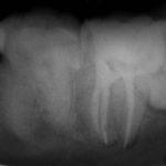 3 1 150x150 - 歯の歯髄組織(神経)を取らざるを得なかった症例です。