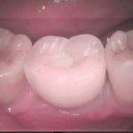 4 3 150x150 - 歯が欠損した所にはインプラントで回復するのがベストです。