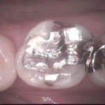11 1 150x150 - せっかく虫歯治療をしても、金属を詰めたのでは又再発する恐れがあります。