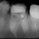 13 150x150 - 根管治療は虫歯治療とは次元が違うものです。