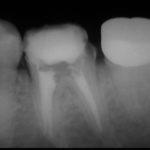 14 150x150 - 根管治療は虫歯治療とは次元が違うものです。