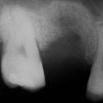 2 150x150 - 上顎の骨が薄い時に、人工骨を使って足りない分を補い、インプラントを埋入しました。