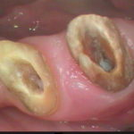 3 4 150x150 - 二本の小臼歯を同時に根管治療しました。