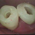 4 3 150x150 - 二本の小臼歯を同時に根管治療しました。