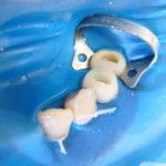 5 150x150 - 二本の小臼歯を同時に根管治療しました。