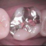 1 8 150x150 - 大臼歯に虫歯が再発したので、治療をやり直しました。