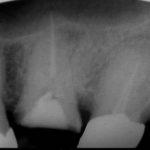 2 4 150x150 - 上顎大臼歯の根管治療をする時は、3~4本在る根管を無菌化しなければなりません。