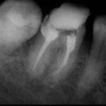 20090917095219 150x150 - 下顎大臼歯の感染根管治療ですが、今回はそのレントゲンのみの提示です。