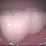 3 2 150x150 - 歯が欠損した所にインプラントを埋入した所、ここを入れ歯で回復するより遥かに快適で良く咬めるようになりました。