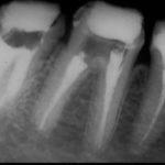 6 1 150x150 - 大臼歯2本の再根管治療です。