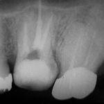 6 150x150 - 上顎大臼歯の根管治療をする時は、3~4本在る根管を無菌化しなければなりません。