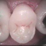 14 150x150 - 虫歯治療の時に金属を詰めるのは審美的治療ではありません。