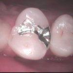 1 150x150 - 外からあまり見えない所ですが、金属が気になられるので審美的虫歯治療法で再治療しました。