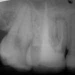 1 150x150 - 上顎大臼歯の根管治療は複雑です。