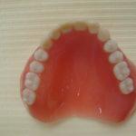 1 7 150x150 - 上顎は総入れ歯、下顎は前の歯が4本残っていた入れ歯の症例です。