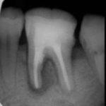 2 2 150x150 - 大臼歯根管治療の症例です。