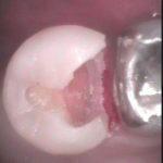 2 3 150x150 - 虫歯を暫く放置していた症例です。