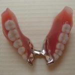 2 4 150x150 - 上顎は総入れ歯、下顎は前の歯が4本残っていた入れ歯の症例です。