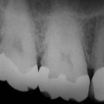 2 6 150x150 - 虫歯治療だけでずっと長持ちすれば良いのですが、虫歯がまた再発して細菌感染が更に進行する場合があります。