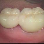 20120326100243 150x150 - 下顎右側大臼歯が2本欠損しました。