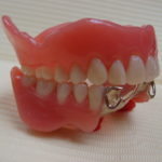 3 3 150x150 - 上顎は総入れ歯、下顎は前の歯が4本残っていた入れ歯の症例です。