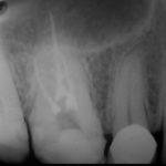3 5 150x150 - 虫歯治療だけでずっと長持ちすれば良いのですが、虫歯がまた再発して細菌感染が更に進行する場合があります。