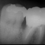 11 1 150x150 - 下顎大臼歯には根管が3~4本有り、根管治療ではここを全て無菌化しなければなりません。