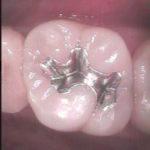 11 150x150 - 一度虫歯治療をした所がまた再感染したので再治療しました。