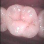 13 150x150 - 一度虫歯治療をした所がまた再感染したので再治療しました。