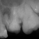 2 150x150 - 一つの歯の感染根管治療にはかなりの時間がかかる事があります。