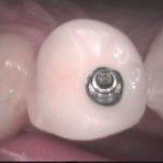 3 1 150x150 - 上顎の小臼歯にインプラントを入れました。