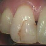 1 7 150x150 - 前歯の虫歯治療のやり直しです。