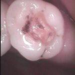 1 9 150x150 - 虫歯治療の時に詰めてあった金属充填物が外れました。