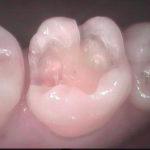 3 1 150x150 - 歯間清掃不足の為、虫歯が再発しました。