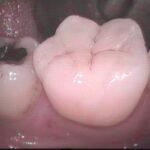 3 11 150x150 - 虫歯治療をした所の金属インレーが外れたので再治療しました。