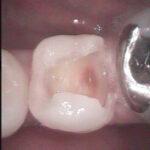 3 13 150x150 - 下顎小臼歯の審美的・接着性充填の症例です。
