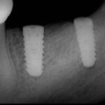 3 8 150x150 - 下顎大臼歯部欠損をインプラント治療した症例です。