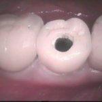 4 2 150x150 - 下顎大臼歯の欠損をインプラントで修復しました。