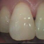 4 9 150x150 - 前歯の虫歯治療のやり直しです。