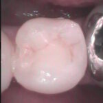 5 1 150x150 - 下顎小臼歯の審美的・接着性充填の症例です。