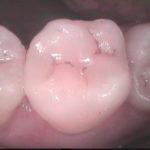 6 150x150 - 歯間清掃不足の為、虫歯が再発しました。