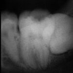 1 150x150 -  レントゲン写真だけですが、大臼歯の根管治療の症例です。