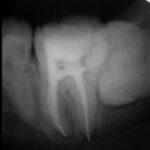 2 1 150x150 -  レントゲン写真だけですが、大臼歯の根管治療の症例です。