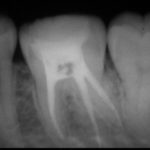 20210104121424 150x150 - じわじわと歯髄組織が細菌感染していたので、根管治療をした症例です。