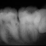 20210104184828 150x150 - 下顎大臼歯に細菌が奥深くまで進み、かなりの痛みが出ました。